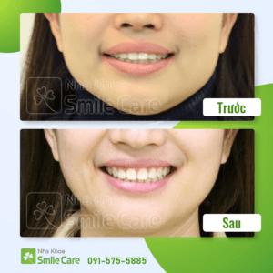 Trước – Sau – Khách hàng chỉnh nha tại Smile Care