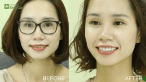 Trước – sau – Khách hàng sử dụng dịch vụ làm răng sứ tại Smile Care