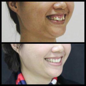 Trước – Sau –  Hình ảnh khách hàng  chỉnh nha, tẩy trắng răng  tại Smile Care